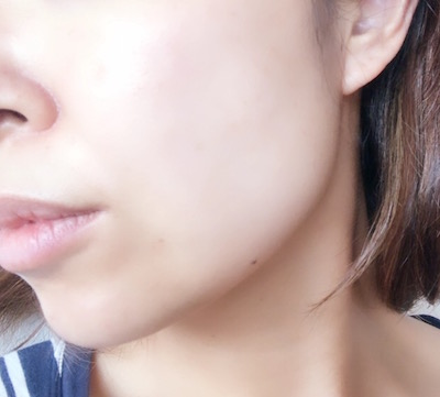 ヒトプラセンタジェル使用後の肌
